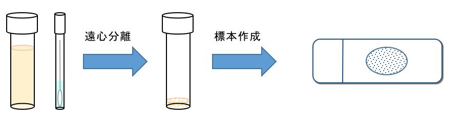 標本作成は細胞成分を濃縮してから細胞が十分取れていることを確認してから検査します