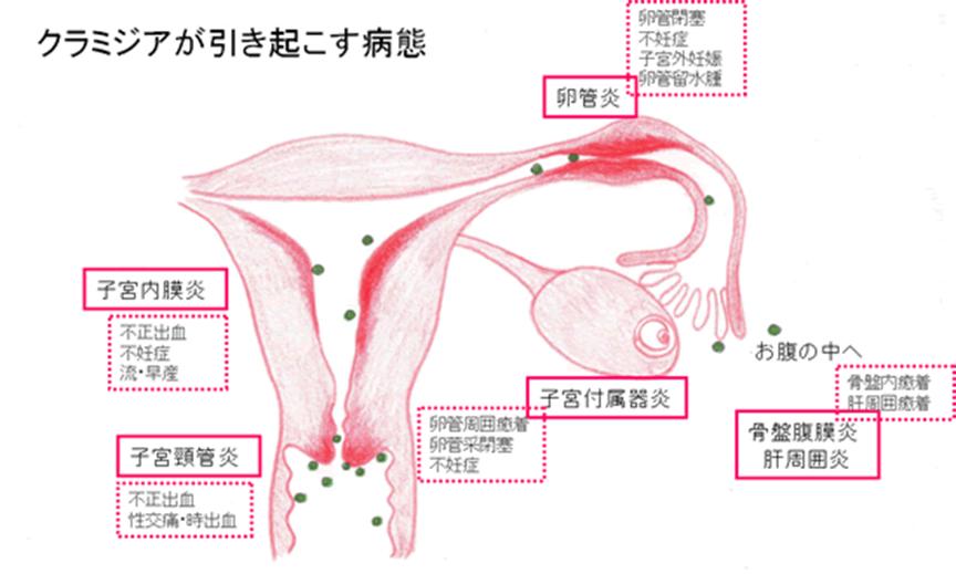 女性性器クラミジアが引き起こす合併症