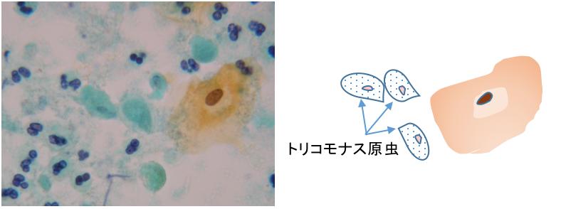 トリコモナスの細胞像とその説明イラスト