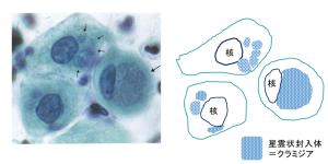 クラミジアの細胞像