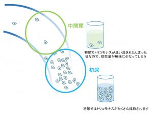 トリコモナスの検査は初尿採取が大切です