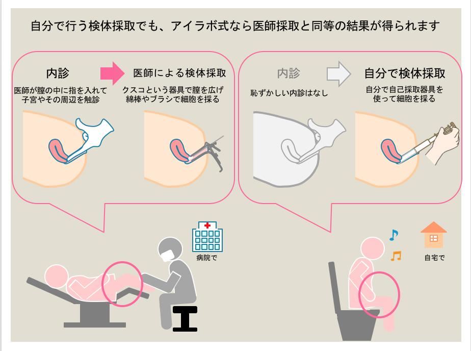医師採取と自己採取 子宮頸がん