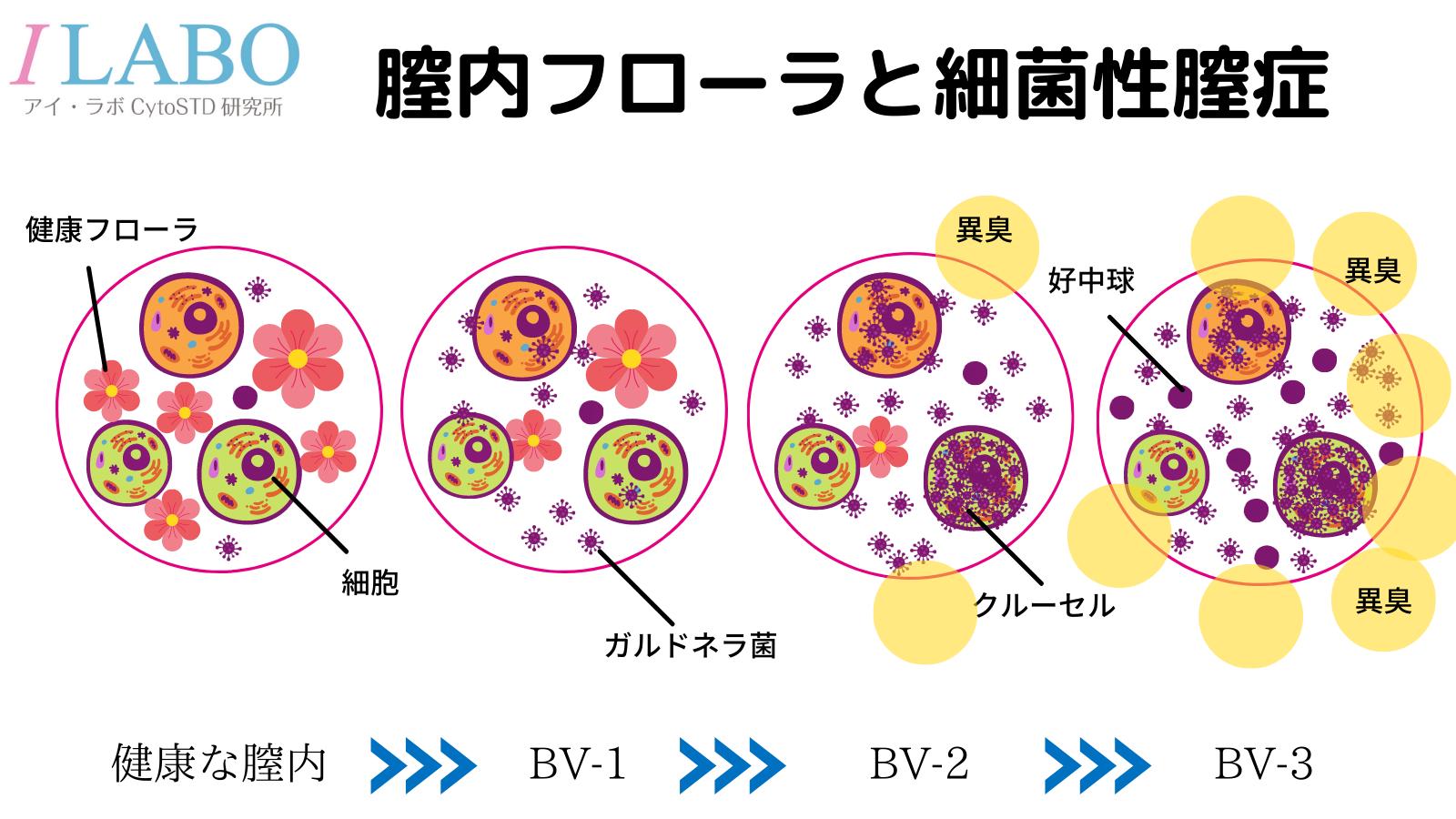 膣内フローラと細菌性膣症