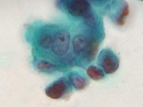 子宮頸がん検査の結果 AGC