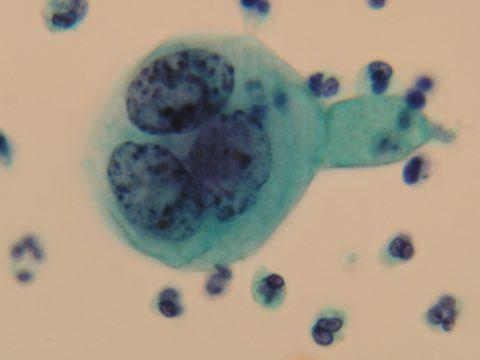 子宮頸がん検査の結果 子宮頸がん SCC 扁平上皮癌