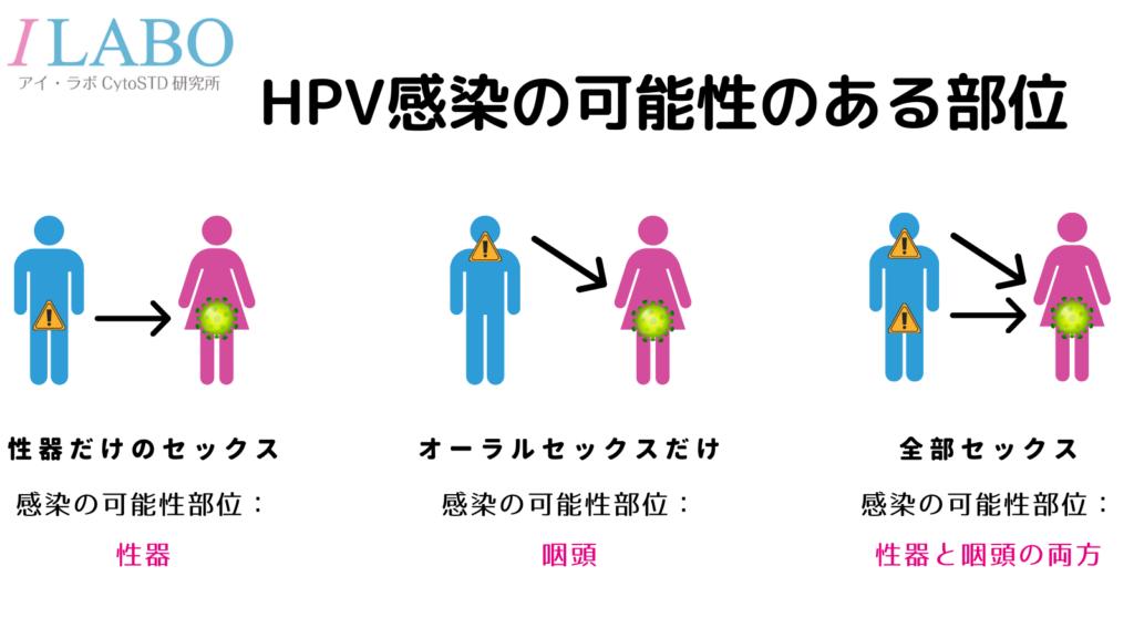 HPV感染 咽頭